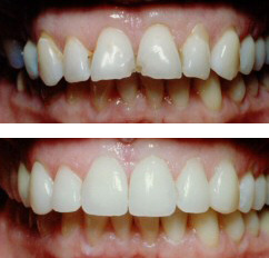 Before and after view of veneers treatment