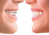 Invisalign is the invisible way to straighten your teeth without braces.