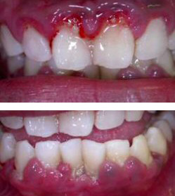 Gum disease, also known as Periodontal disease, is a common infection of the gum and jaw bone.