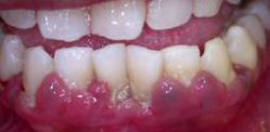 Gum disease is one of the potential causes of receding gums