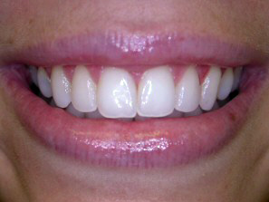 Even if you whiten your teeth you still want the result to look natural