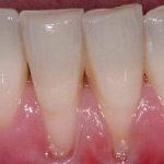 gums-receding