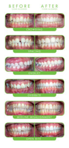 Clear Braces Brisbane with Clear Correct and Today's Dentistry on Brisbane's Northside